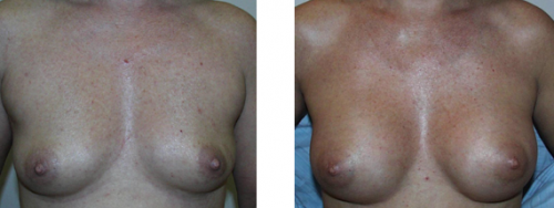 A to B cup with saline implants 1a