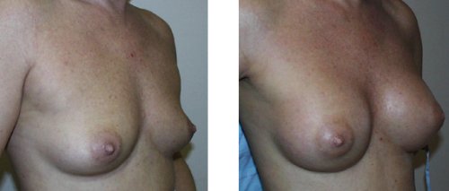 A to B cup with saline implants 1b