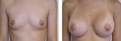 A to average C cup with saline implants 1a