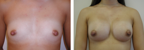 A to average C cup with saline implants 1b