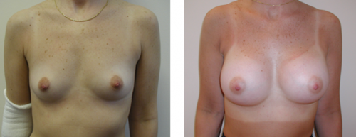 A to average to full C cup with saline implants 1a