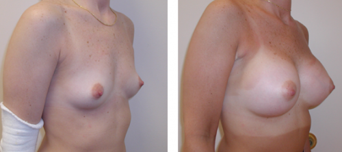 A to average to full C cup with saline implants 1b
