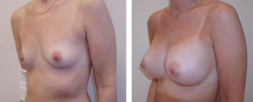 A to average to full C cup with saline implants 1c