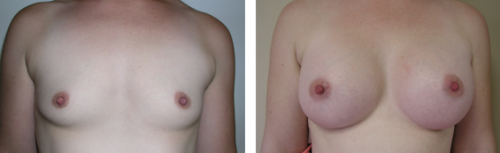 A to full C cup with saline implants 1d