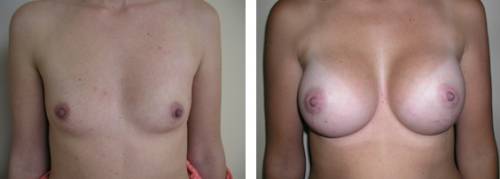 A to full C cup with saline implants 2a