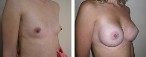 A to full C cup with saline implants 2b