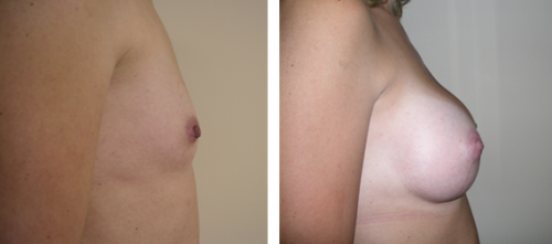 A to full C cup with saline implants 2c