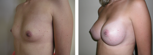 A to full C cup with saline implants 2d