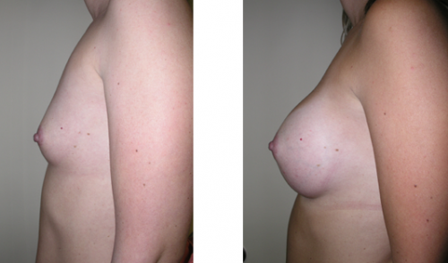 A to full C cup with saline implants 2e