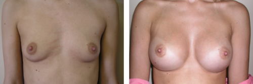 A to full C cup with saline implants 3a