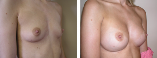 A to full C cup with saline implants 3b