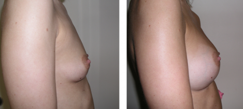 A to full C cup with saline implants 3c