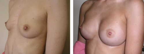 A to full C cup with saline implants 3d