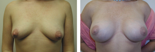 A to full C - small D cup with saline implants