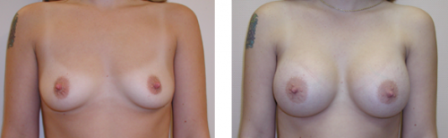 A to small to average C cup with saline implants