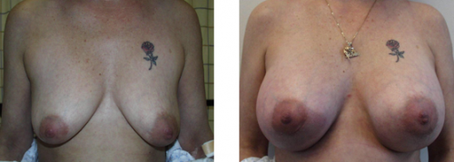 B cup to D cup with saline implants and no breast lift, patient did not wish breast lift, happy with result 1a