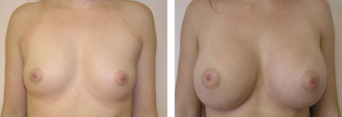 B to D cup with saline implants 1a