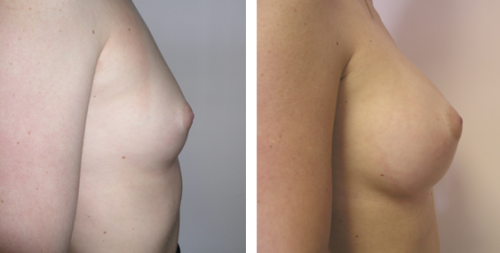 B to D cup with saline implants 1b