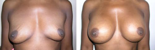 B to D cup with saline implants 2a