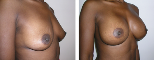 B to D cup with saline implants 2b