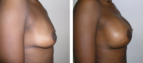 B to D cup with saline implants 2c