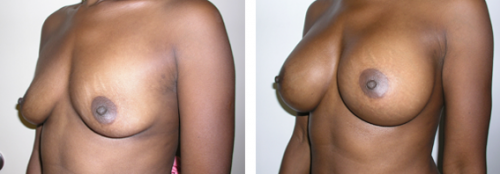 B to D cup with saline implants 2d
