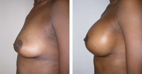 B to D cup with saline implants 2e