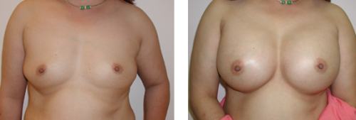 B to D cup with saline implants 3a