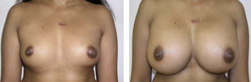 B to D cup with saline implants 4a