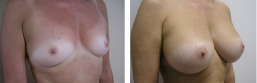 B to D cup with saline implants 5b