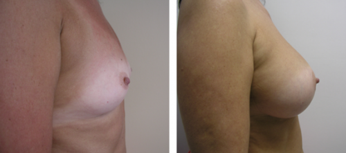 B to D cup with saline implants 5c