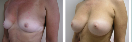 B to D cup with saline implants 5d