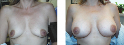 B to D cup with saline implants 6a