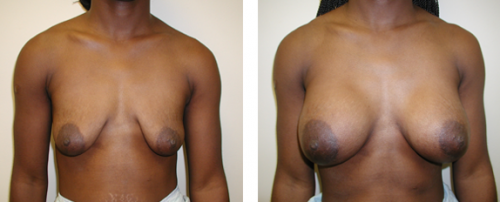 B to D cup with saline implants, patient requested no breast lift and was happy with the final result 1