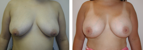 B to D cup with saline implants without a breast lift 1