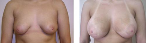 B to D cup with saline implants without a breast lift, patient did not want a breast lift and was happy with result 1
