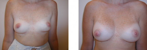 B to average C cup with saline implants