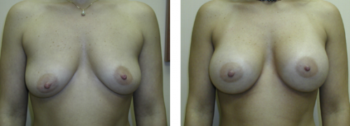 B to average C cup with saline implants without a breast lift 1a