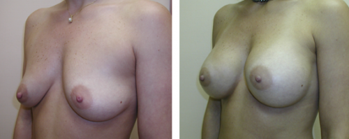 B to average C cup with saline implants without a breast lift 1b