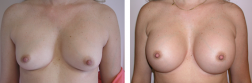 B to full C cup with saline implants and better nipple areola position 1