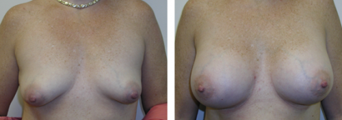 B to full C cup with saline implants with improvement of nipple areola position