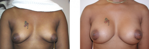 B to full C, small D Cup with saline implants 2a