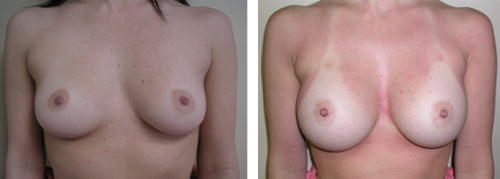 B to full C, small D cup with saline implants 1a