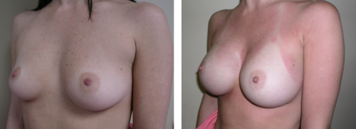 B to full C, small D cup with saline implants 1d