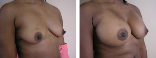 B to full D cup with saline implants 1b