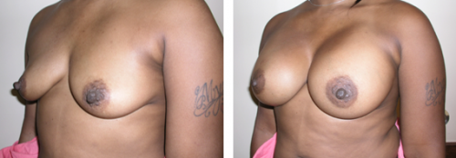 B to full D cup with saline implants 1d