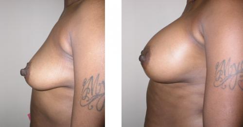 B to full D cup with saline implants 1e