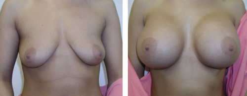 B to full D cup with saline implants, with droop corrected with implants and without a breast lift