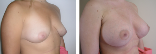 B to small D cup with saline implants without a breast lift 1b
