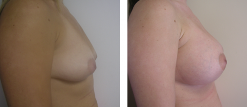 B to small D cup with saline implants without a breast lift 1c